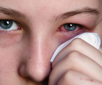 istock_photo_of_woman_holding_tissue_to_reddened_eye