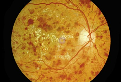 princ_rm_photo_of_eye_with_diabetic_retinopathy