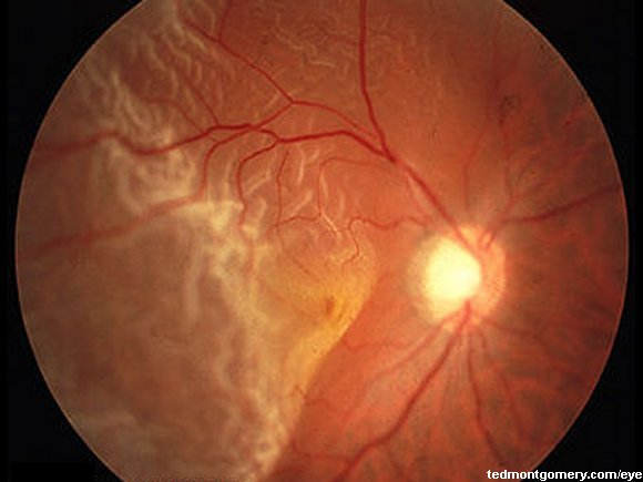 RetinalDetachment-4